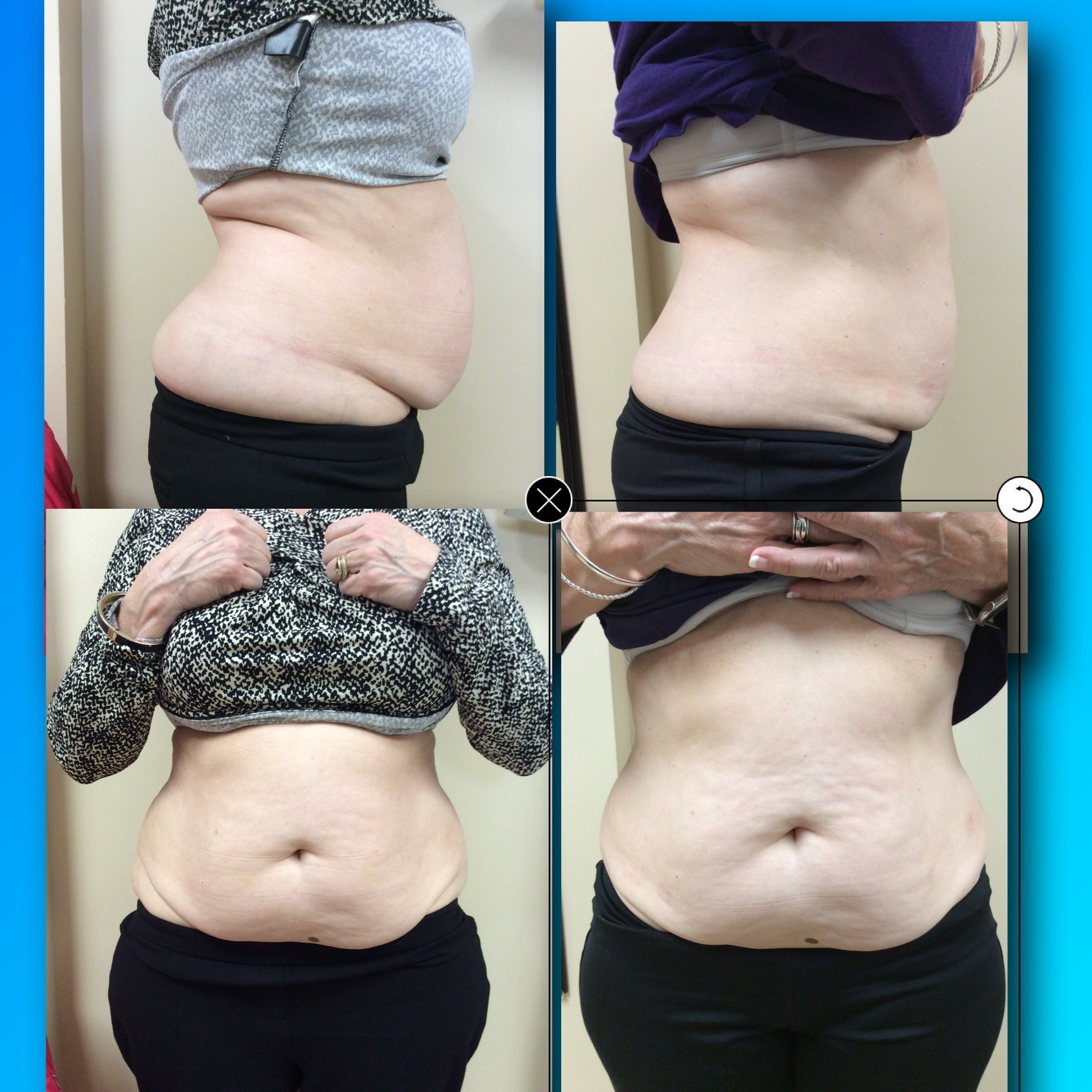 Cool Sculpting in Sugar Land, Cool Sculpting Before and After Photos